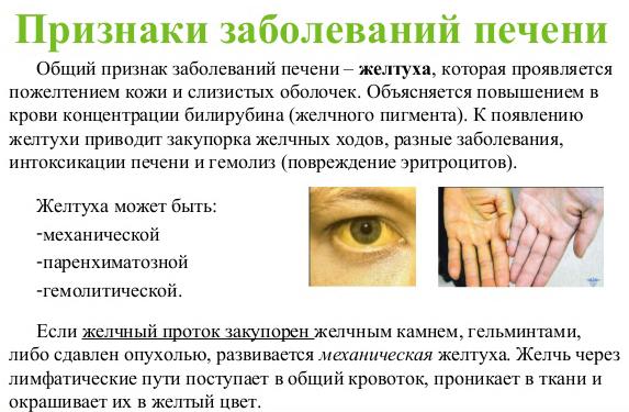 признаки заболеваний печени