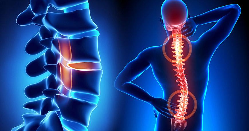 Лечение спины и позвоночника вертебролог