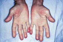 Эндокардит септический затяжной