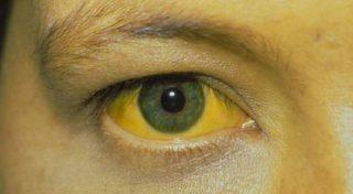 Катаральная желтуха